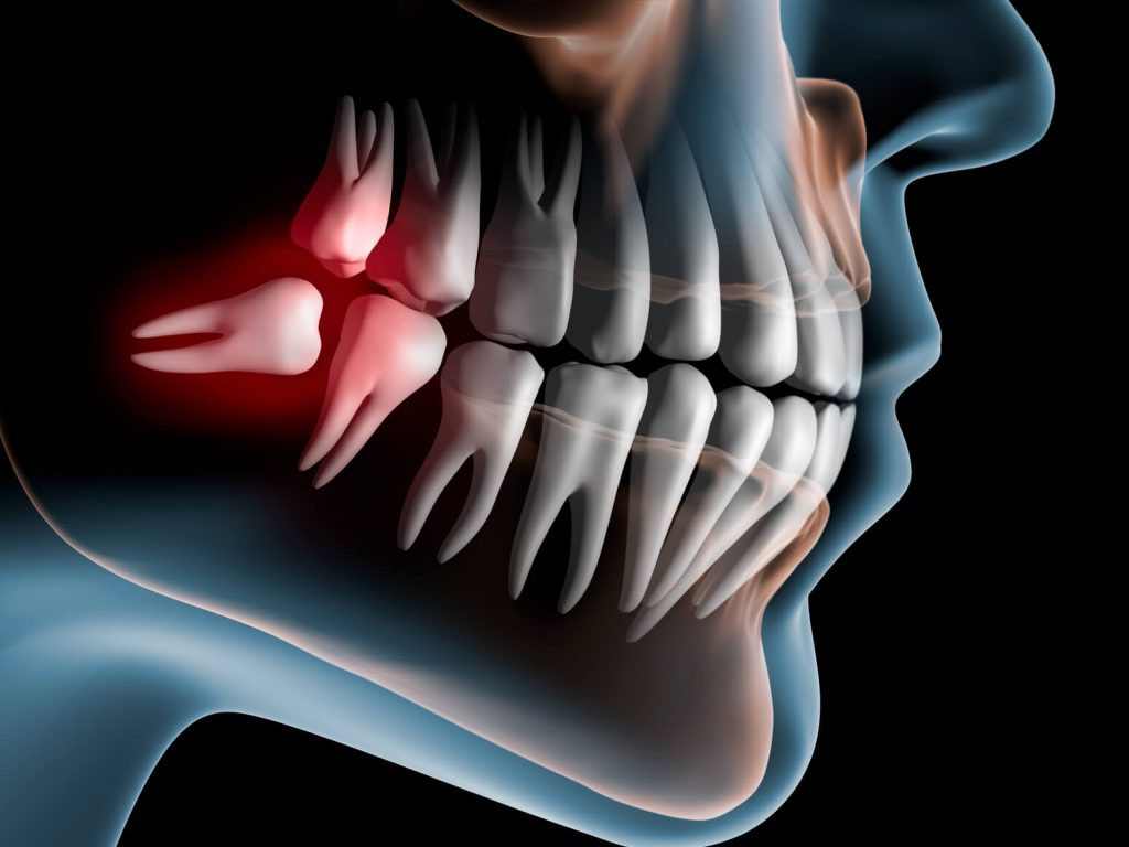 Impacted wisdom tooth illustration