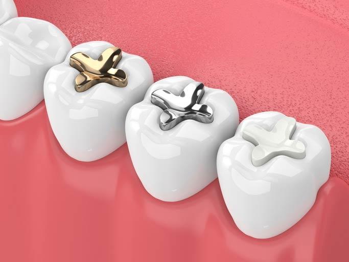 Dental fillings illustration
